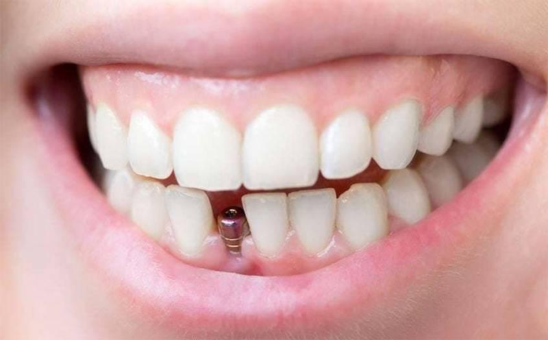 Implantologija prvoklasno rešenje za problem gubitka zuba