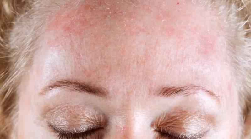 Prirodna krema za kožu koju biste preporučili