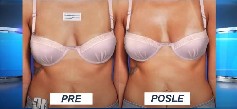 Podizanje i zatezanje grudi bez proteze - ono što svakoj dami u zrelim godinama treba!