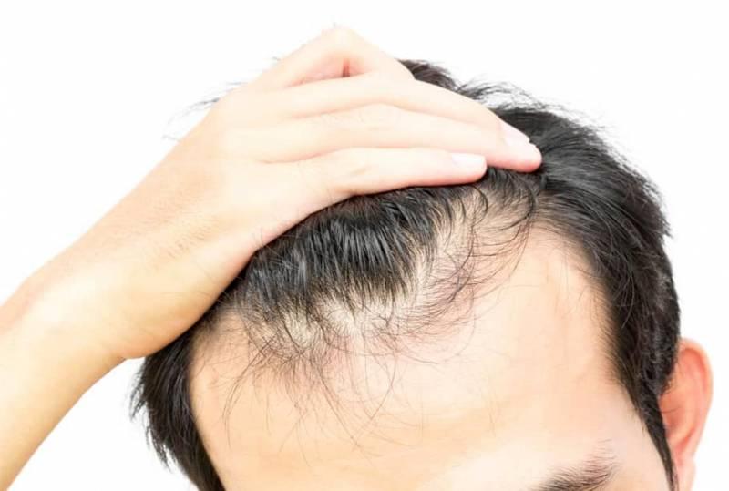 Šta je najbolje protiv opadanja kose?