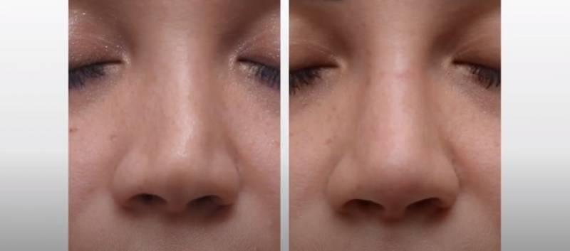 Nehirurška korekcija nosa korekcija nosa bez operacije